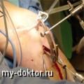 Артроскопия суставов - MY-DOKTOR.RU