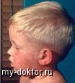 Детские инфекционные заболевания: Краснуха - MY-DOKTOR.RU