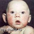 Геморрагические диатезы - MY-DOKTOR.RU