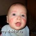 Геморрагический диатез у детей - MY-DOKTOR.RU