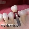 Имплантация зубов в чём преимущества - MY-DOKTOR.RU
