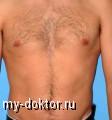 Как бороться с нежелательными волосами у мужчин. Рекомендации специалистов - MY-DOKTOR.RU