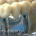 Как проводится имплантация зубов - MY-DOKTOR.RU