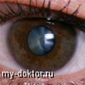 Катаракта глаза и ее лечение - MY-DOKTOR.RU