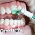 Лечение кариеса без сверления: метод ICON - MY-DOKTOR.RU