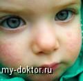 Лечение крапивницы у малышей - MY-DOKTOR.RU