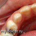 Лечение пульпита без боли и брекет системы в Санкт-Петербурге - MY-DOKTOR.RU
