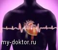 Мерцательная аритмия - дорога к инсульту - MY-DOKTOR.RU