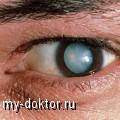 Методы лечения катаракты - MY-DOKTOR.RU
