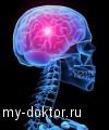 Мозговой инсульт - MY-DOKTOR.RU