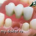 Несъемное протезирование мостами – самый востребованный способ восстановления целостности зубного ряда - MY-DOKTOR.RU