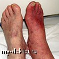 Облитерирующий эндартериит - MY-DOKTOR.RU
