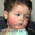 Ох уж эта аллергия! - MY-DOKTOR.RU