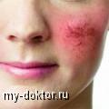 Особенности заботы о коже при розацеа - MY-DOKTOR.RU