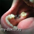 От чего зависит цена зубных имплантов? - MY-DOKTOR.RU