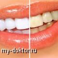 Отбеливание зубов. Виды отбеливания. Показания и противопоказания - MY-DOKTOR.RU