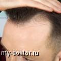 Пересадка волос - MY-DOKTOR.RU