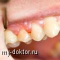 Периодонтит. Его проявления и лечение - MY-DOKTOR.RU