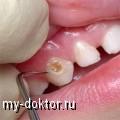 Пломбирование зубов при кариесе - MY-DOKTOR.RU