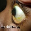 Причины развития кератоконуса и способы его лечения - MY-DOKTOR.RU
