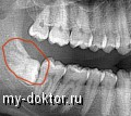 Рентген зубов увеличивает риск рака щитовидной железы - MY-DOKTOR.RU