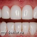 Реставрационное отбеливание зубов VS традиционное отбеливание - MY-DOKTOR.RU