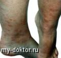 Саркоидоз - MY-DOKTOR.RU