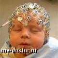 Церебральная ишемия у новорожденных - MY-DOKTOR.RU