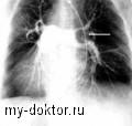Тромбоэмболия легочной артерии - MY-DOKTOR.RU