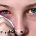 Туберкулез глаз - MY-DOKTOR.RU