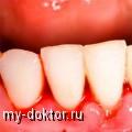 Вас консультируют лучшие специалисты! (стоматолог, терапевт, и педиатр) - MY-DOKTOR.RU