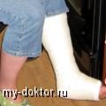 Восстановление после снятия гипса - MY-DOKTOR.RU
