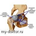 Всё об артрите тазобедренного сустава: видео — отличие артрита от артроза - MY-DOKTOR.RU